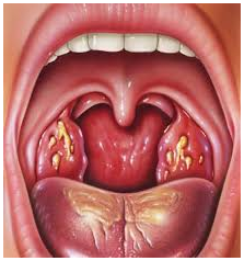 Amigdalitis